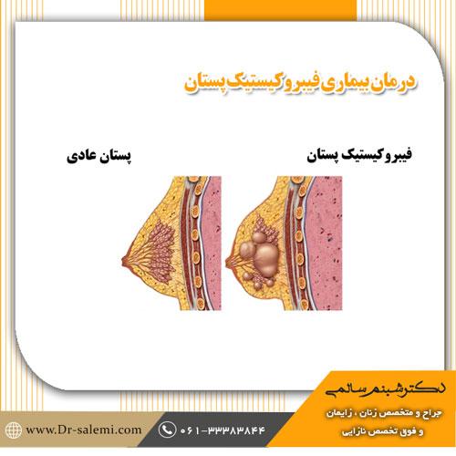 درمان بیماری فیبروکیستیک پستان